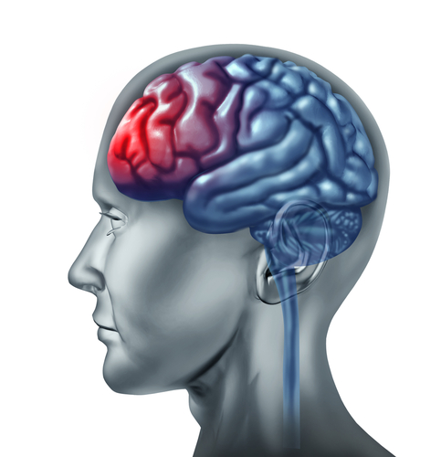 The leading causes of traumatic brain injuries are falls and traffic accidents, and traffic accidents are the primary cause of TBI-related deaths, according to traumatic brain injury statistics.