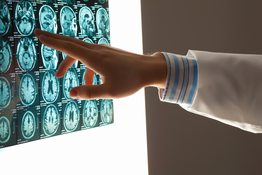 doctor analyzing brain scan images